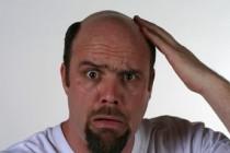 Otkriven uzrok ispadanja kose, na pomolu i lijek