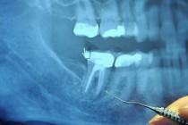 I zube ćemo dobijati iz epruvete?