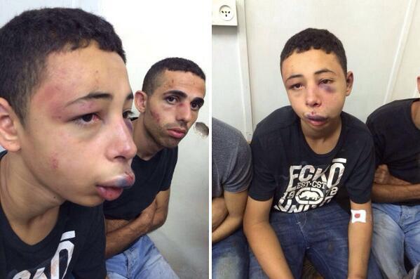 neugodna-situacija-za-izrael-palestinski-djecak-brutalno-prebijen-od-strane-izraelske-policije-je-americki-drzavljanin-iz-floride_3638_5265_e