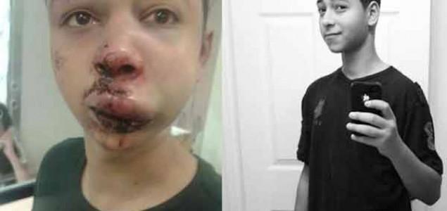 Neugodna situacija za Izrael: palestinski dječak, brutalno prebijen od strane izraelske policije, je američki državljanin iz Floride