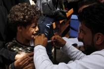 U epidemiji difterije u Jemenu umrla 91 osoba