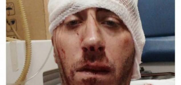 U Banjaluci brutalno pretučen novinar BN TV Vladimir Kovačević