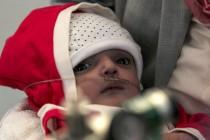UN i Save the Children: Još jedan milion djece u Jemenu na ivici gladi