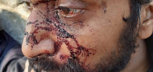 Hrvatski policajci pet sati tukli migrante i razmazali im hranu po krvavim glavama